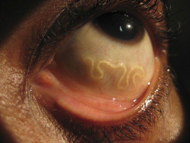 Toxocaroza: Simptome, Diagnostic și Tratament