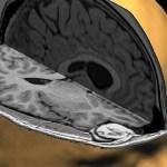 Forscher führen hohe Mengen Aluminium im Gehirn autistischer Kinder auf Impfstoffe zurück (Video)