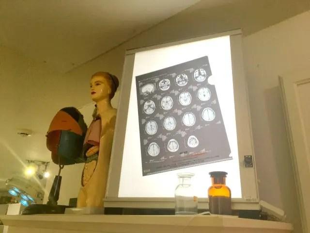 MRI scan of the brain of Takamasa san