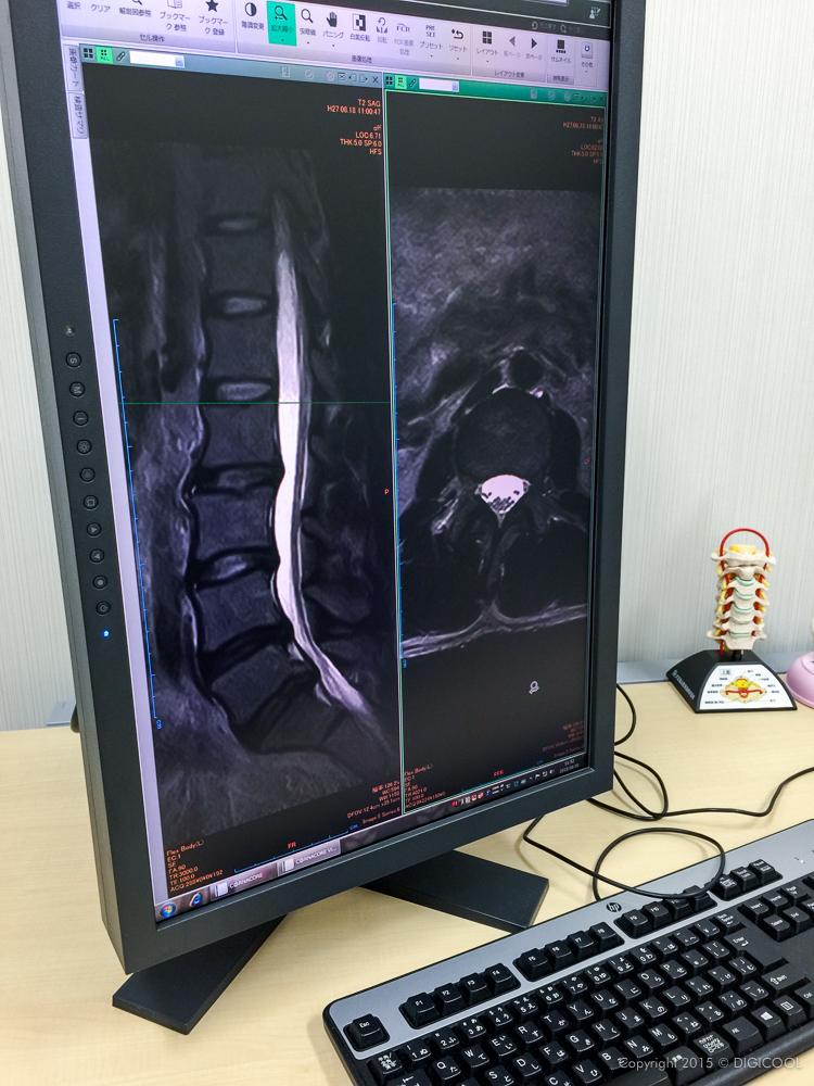 MRI映像