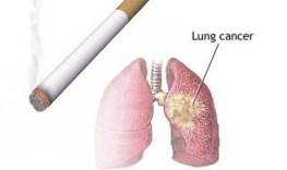 ciri-ciri-kanker-paru-paru
