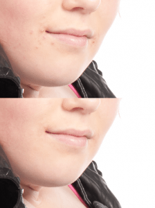 To Heal or Not to Heal - Blemish Removal
