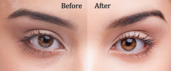 Before and after images of eyes