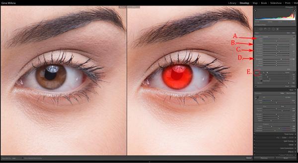 EyesBP 5