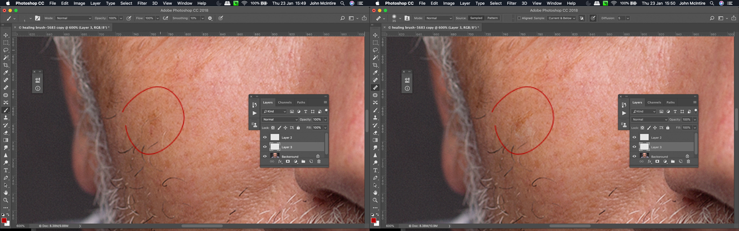 Using the healing brush for skin retouching in Photoshop.