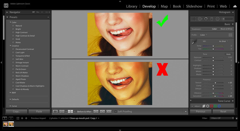 good and bad teeth