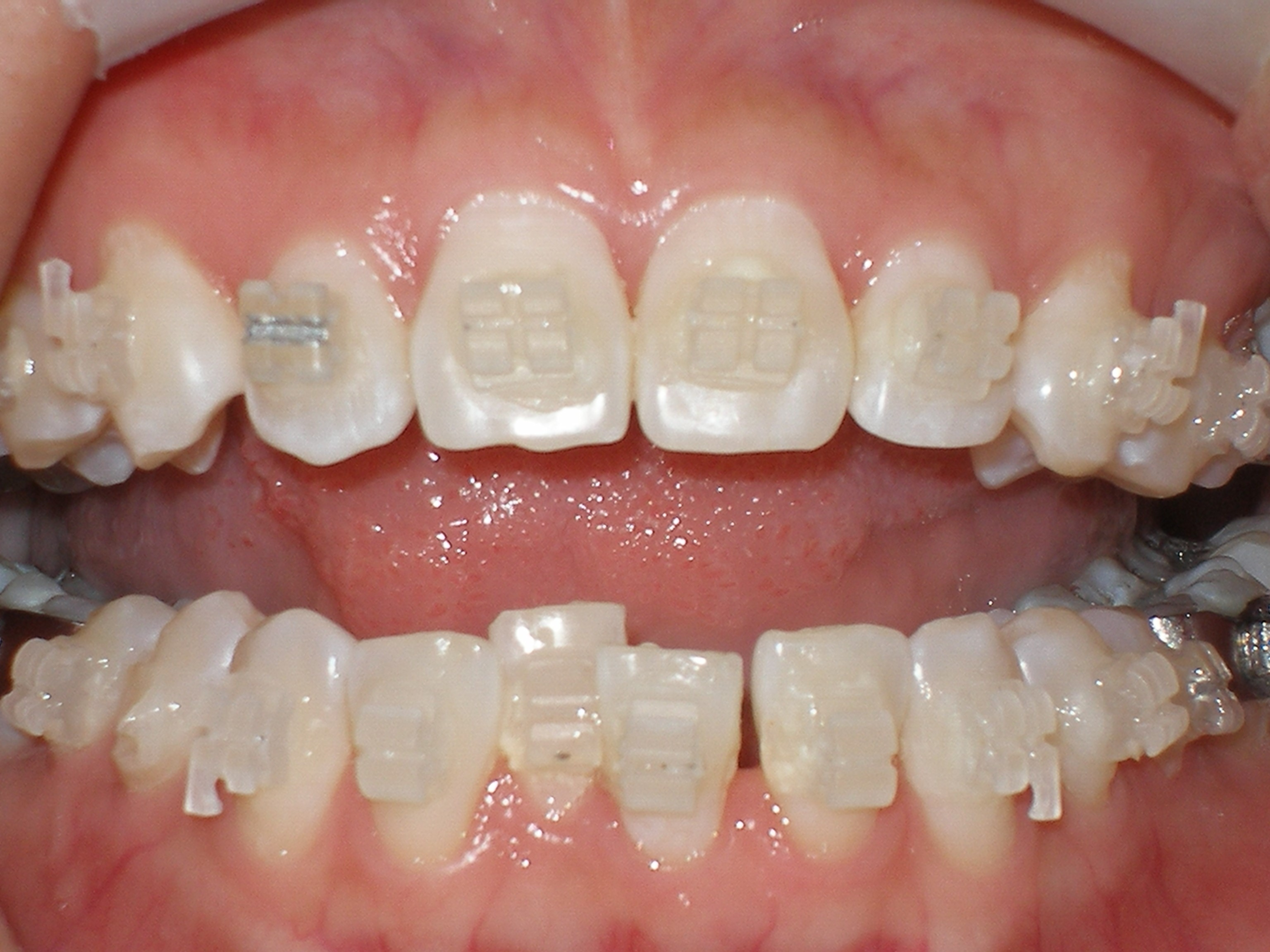 牙齒矯正 — Digital DentalDigital Dental