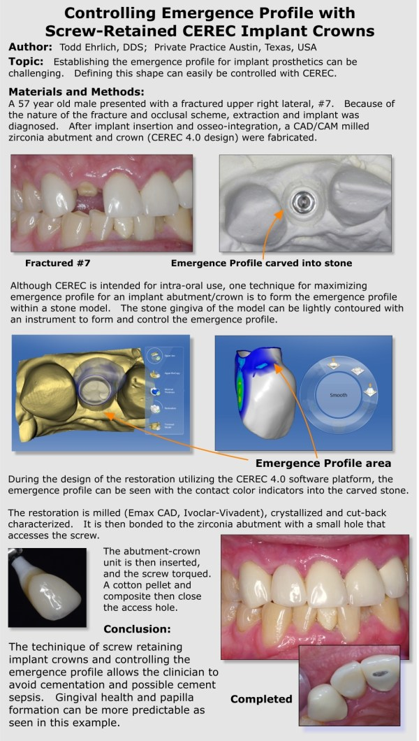 Implant Poster Presentation Cerec 27.5 - Digital Enamel