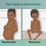 Malnutrition in India its types, causes and effects   UPSC – IAS
