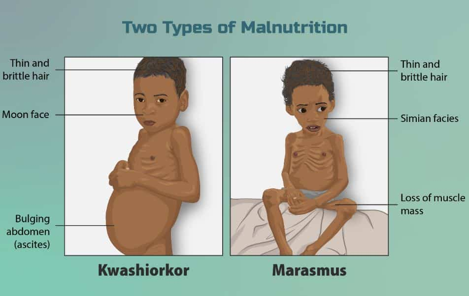 Types of Malnutrition   UPSC - IAS