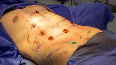 Photo of Instant Six Pack Surgery Is Now a Thing