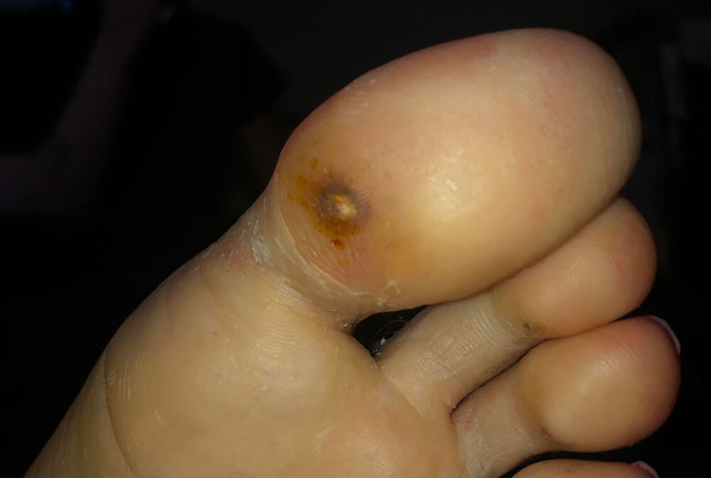 Big toe with a corn or impact wound