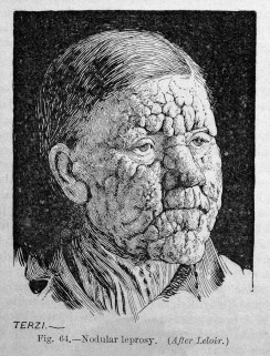 a black and white etching of a man with rough, wart-like skin