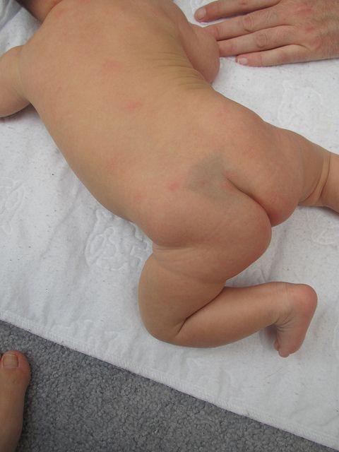 Mancha roxa acima do bumbum do bebê: Essas manchas azuladas, chamadas de mancha mongólica, não têm nada a ver com distúrbios do desenvolvimento. Diz-se mongólica, porque as crianças asiáticas (da região da Mongólia) mascem com essa mancha. E como vivemos num país miscigenado, a possibilidade de seu filho nascer com esta mancha é de 40 a 80%. Não há com que se preocupar, pois com os meses a mancha some naturalmente.