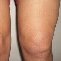 Диклен комплексный гель для лечения и профилактики суставов
