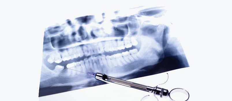 Complications in Local Anesthesia - Dimensions of Dental Hygiene
