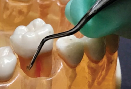 first-molar-teeth-fig-6