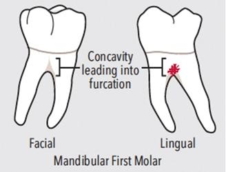 first-molar-teeth-figure2-328