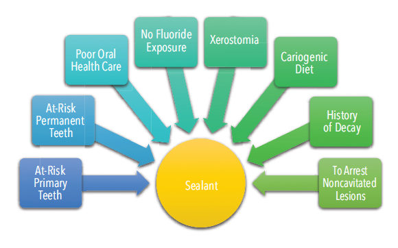 sealants-fig-2