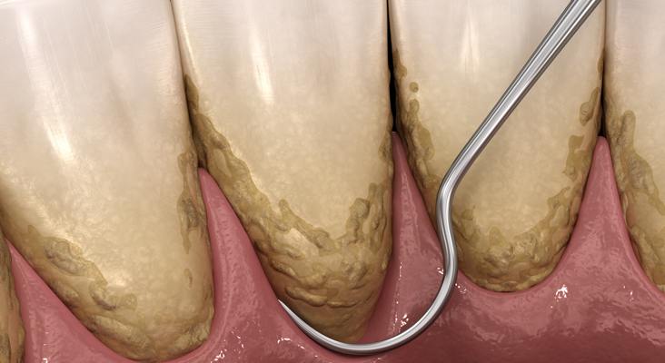 dental scaling and planing 3d graphic