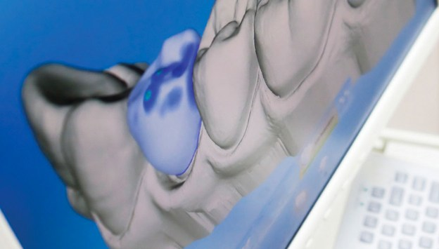 The Importance of the Intraoral Scanner course image