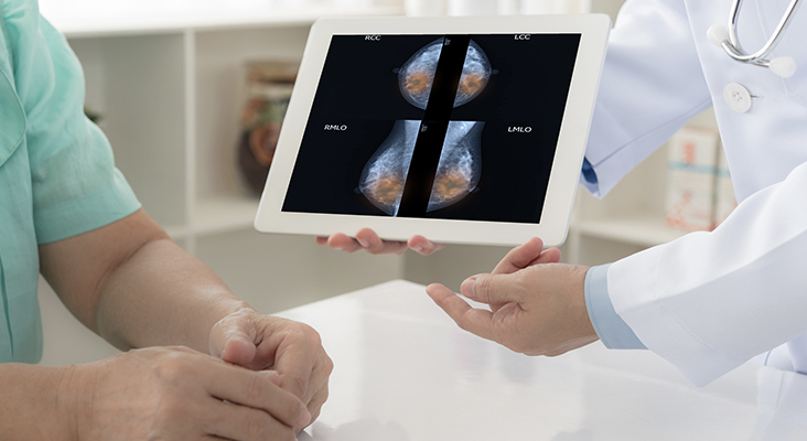 breast cancer breaststroke concept. doctor explain mammogram results of breast test from x-ray scan on digital tablet screen to patient.