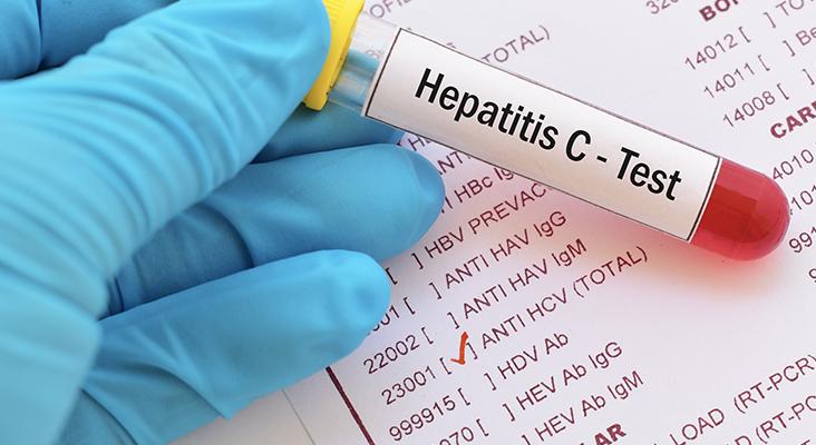 Hepatitis C virus (HCV) test