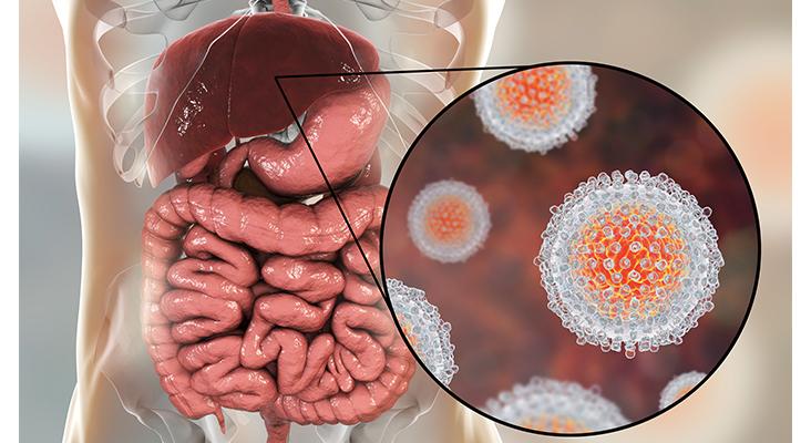 epatitis C virus infection medical concept, 3D illustration
