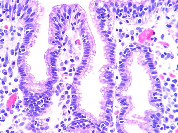 The Oral Impact of Celiac Disease course image
