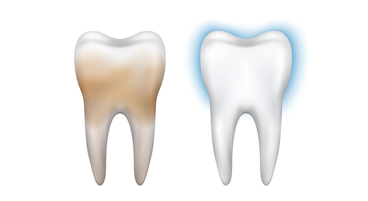 stained vs clean tooth comparison graphic