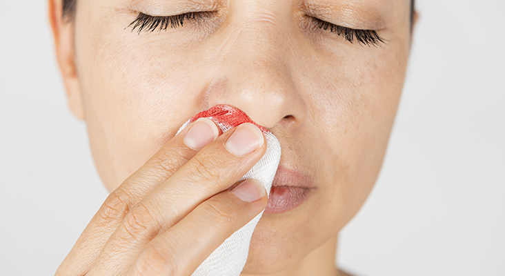 Woman using a sterile gauze bandage to stop a nosebleed