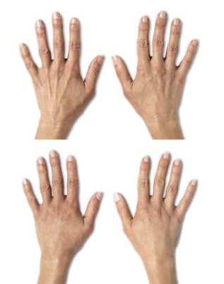 Λίφτινγκ Χεριών με Λίπος