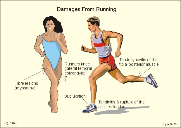 Technology In Sports Medicine: How Gait Analysis Can Protect You From
