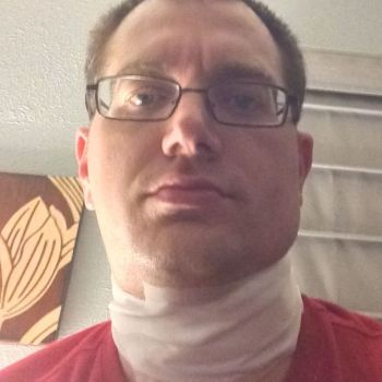 Me, looking totally thrilled the day after having a salivary gland removed from my mouth. Notice the stylish gauze wrap around my neck.