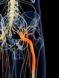 http://www.care2.com/greenliving/what-is-sciatica.html