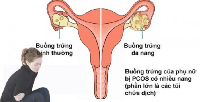 Bệnh đa nang buồng trứng khó sinh con