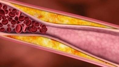 Nhiễm mỡ trong máu nên kiêng ăn gì?