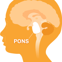Brain Diagram Pons 2 Light Switch Wiring What Is Dipg Of The With Region Highlighted