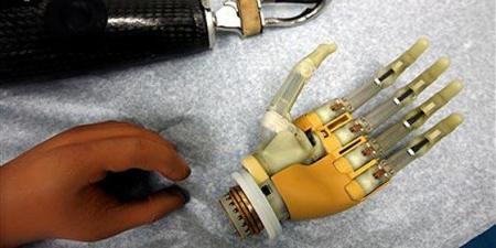 Británica se amputará una mano para implantarse una biónica