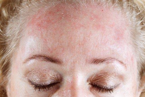 ¿Por qué unas personas son alérgicas y otras no?