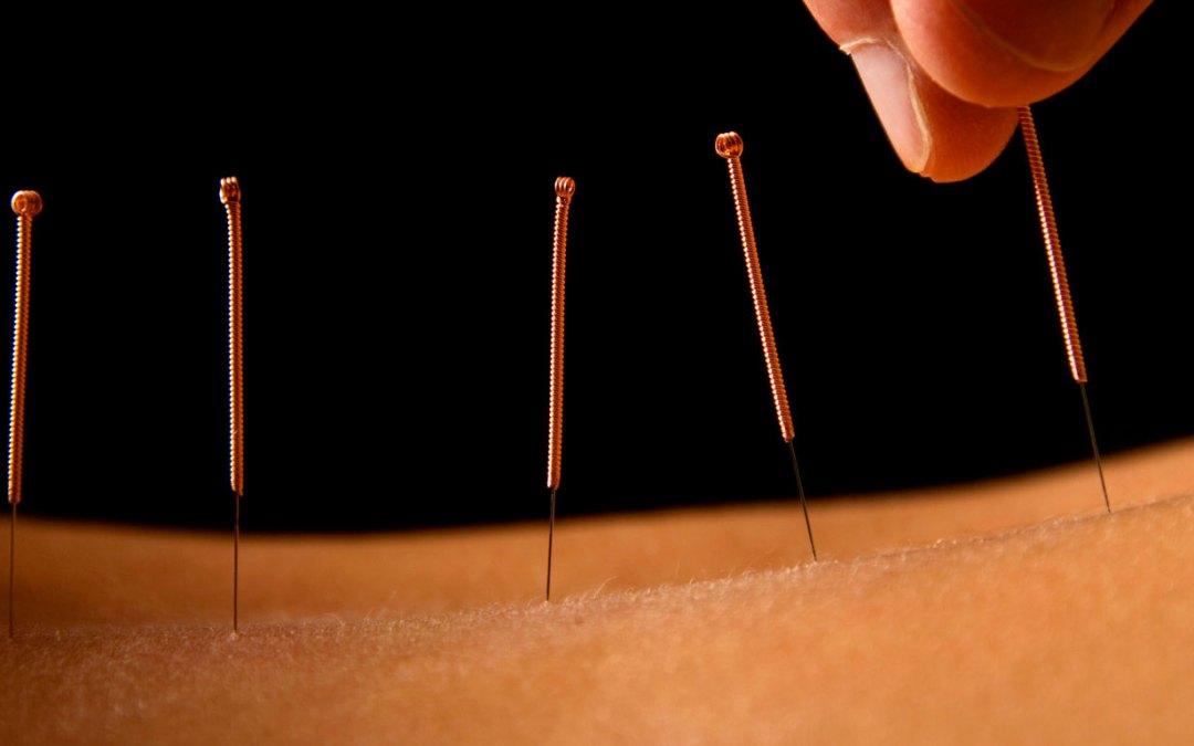 ¿Para qué sirve la acupuntura?