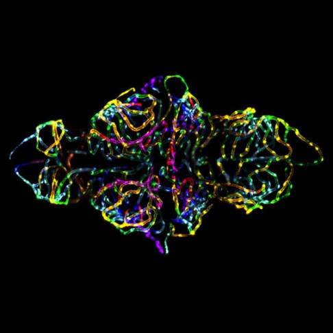 Photo of the developing brain of a live zebrafish