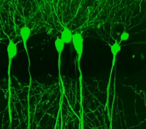Photo of green blobs with long tails leading downward