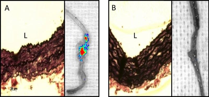 Microscopic view of damaged vs. undamaged lamina