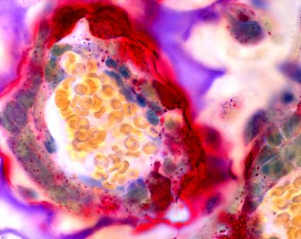 Osteoclast cells