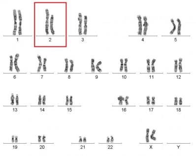 shattering news  how chromothripsis cured a rare disease