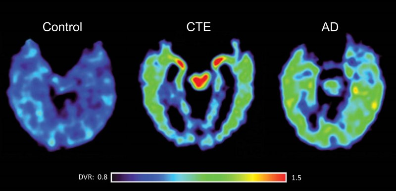 Brain scans of CTE and AD