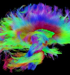 making the connections study links brain s wiring to human traits nih director s blog [ 3127 x 2248 Pixel ]