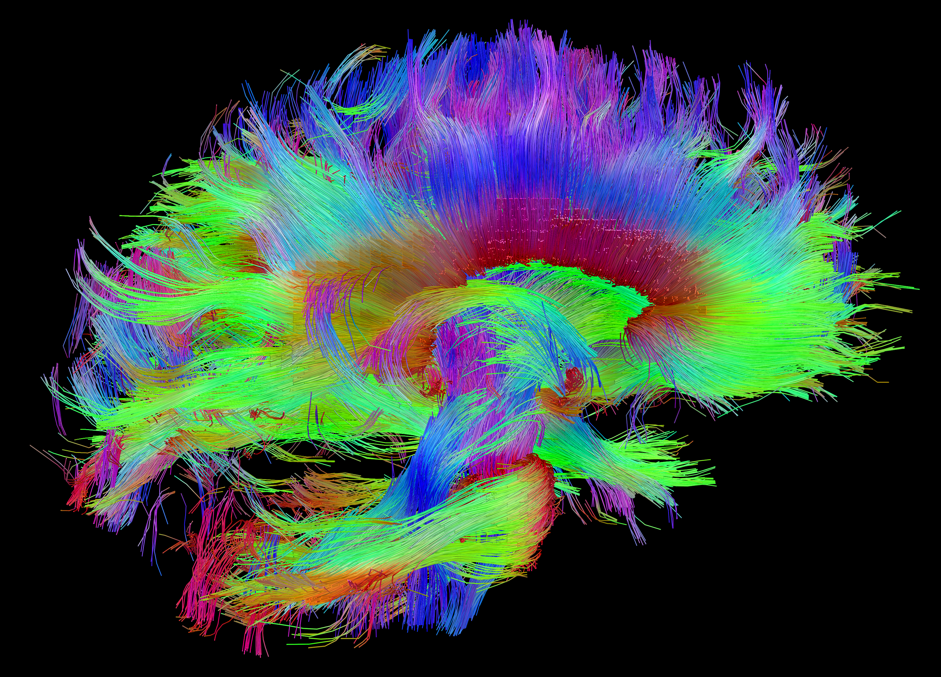 making the connections study links brain s wiring to human traits rh directorsblog nih gov wiring of the brain definition wiring of the brain pdf