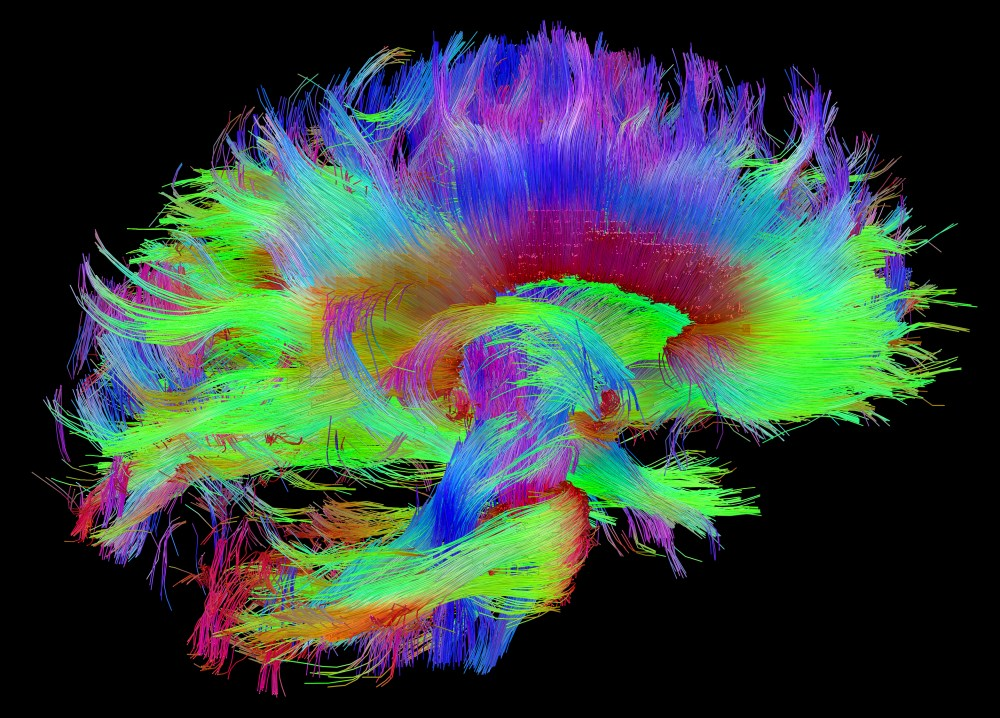 medium resolution of making the connections study links brain s wiring to human traits nih director s blog